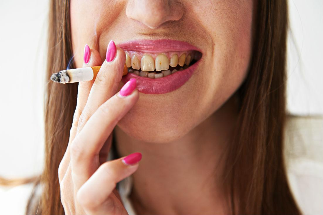 What Does Smoking Do to Your Teeth?